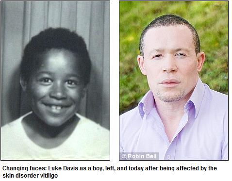 eli5 why how did michael jackson turn from black to white explainlikeimfive