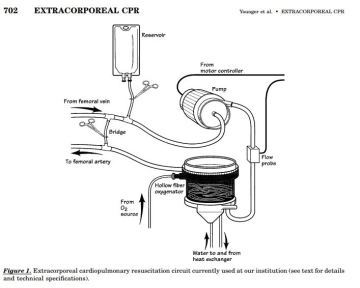 Picture of extracorporeal CPR
