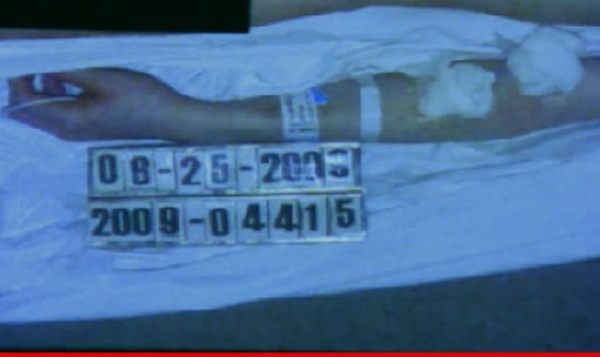 The original site for the autopsy report is http://www.autopsyfiles.org/reports/Celebs/jackson,%20michael_report.pdf