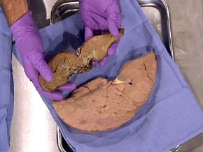 A healthy liver next to a deseased liver. The greenish color is seen to the naked eye